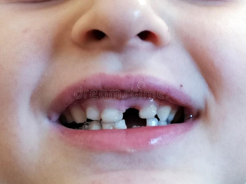 Child proud of missing front tooth. Happy boy proud of missing front tooth. Milk royalty free stock images