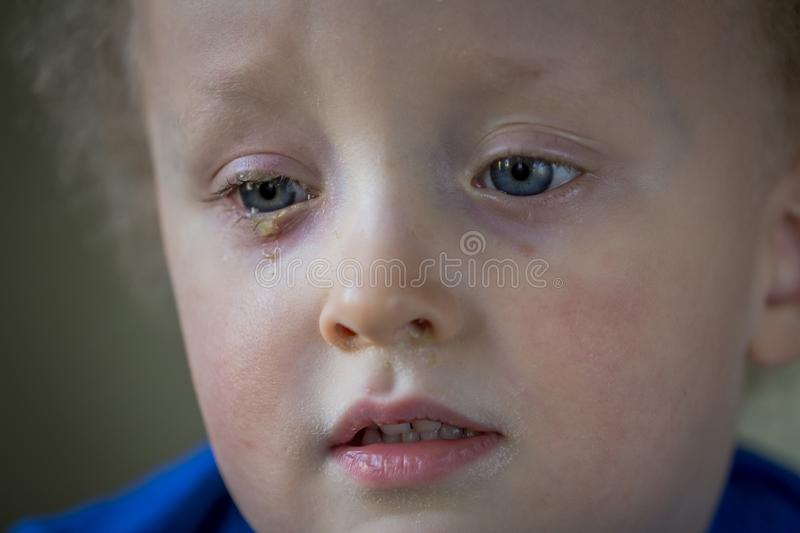 Child with purulent conjunctivitis, contagious eye infection. Symptoms and treatment concept. Close up stock photos