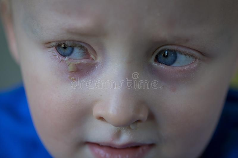 Child with purulent conjunctivitis, contagious eye infection. Symptoms and treatment concept. Close up royalty free stock photo