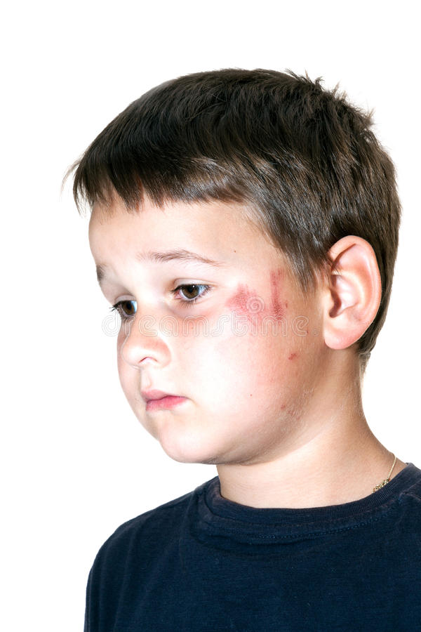 Child with a scraped face. Sad boy with a scraped face stock photography