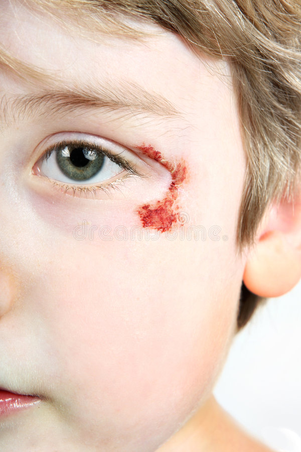 Free Child With A Scrape Near His Eye Stock Image - 7442631