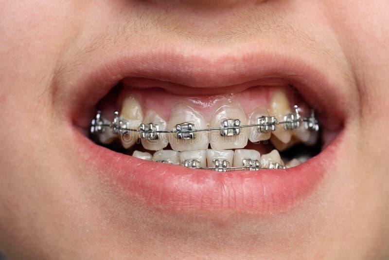 Children teeth with braces stock image