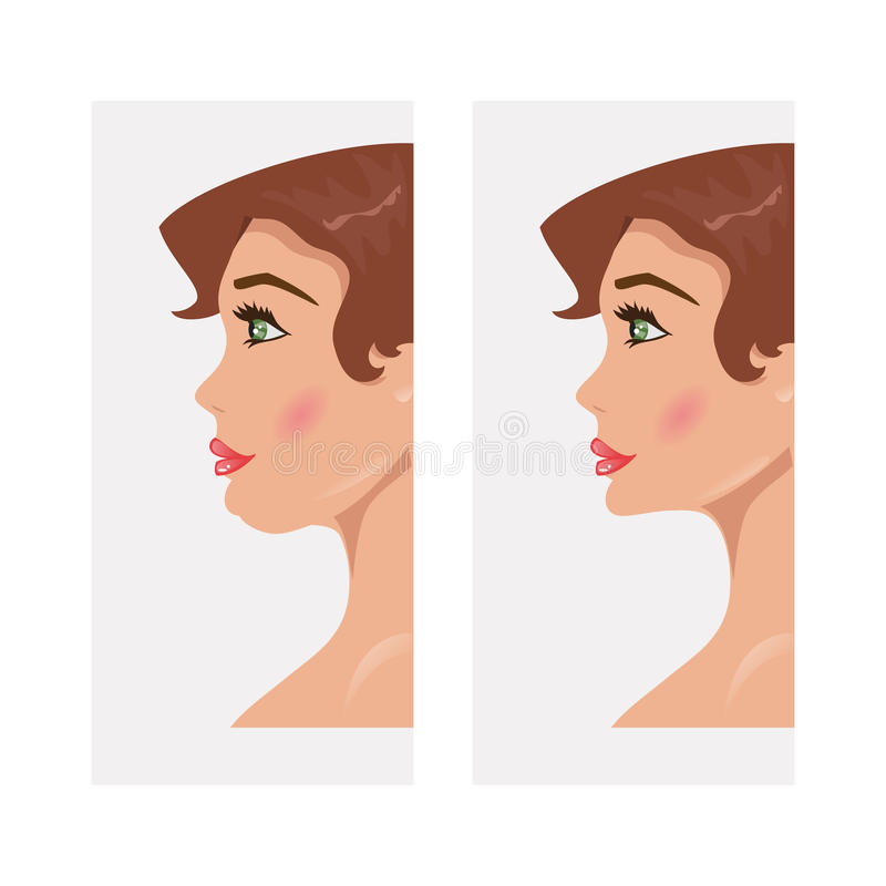 Chin before and after plastic surgery. Vector Illustration. Illustration of a woman with a double chin and a normal chin surgery royalty free illustration
