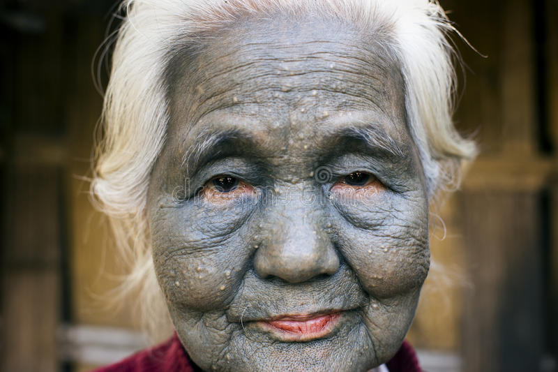 Chin tribe tattooed woman (Uppriui). SAW, MYANMAR, DECEMBER 10: Chin tribe tattooed woman (Uppriu) poses for a photo on December 10, 2015 Saw, Myanmar. Also stock photo