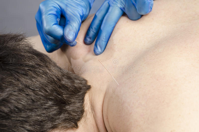 Chinese medicine doing acupuncture royalty free stock photo