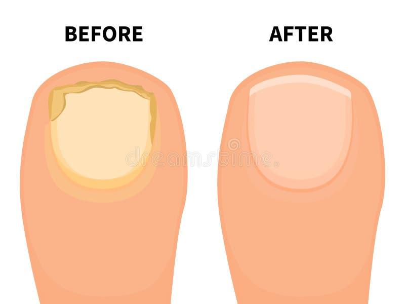 Chiodo del dito del piede di vettore prima e dopo la malattia fungosa royalty illustrazione gratis