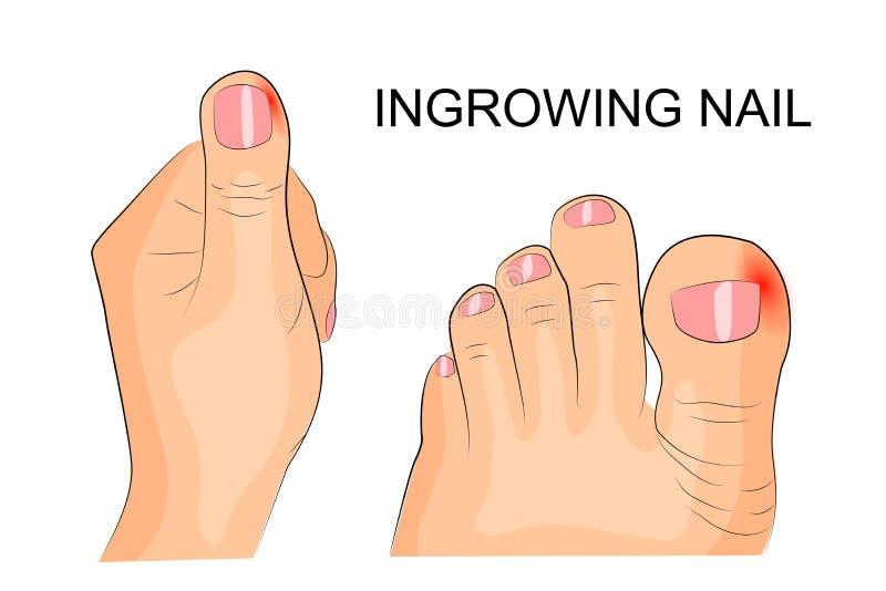 Chiodo Ingrowing le dita e le dita del piede infiammazione royalty illustrazione gratis