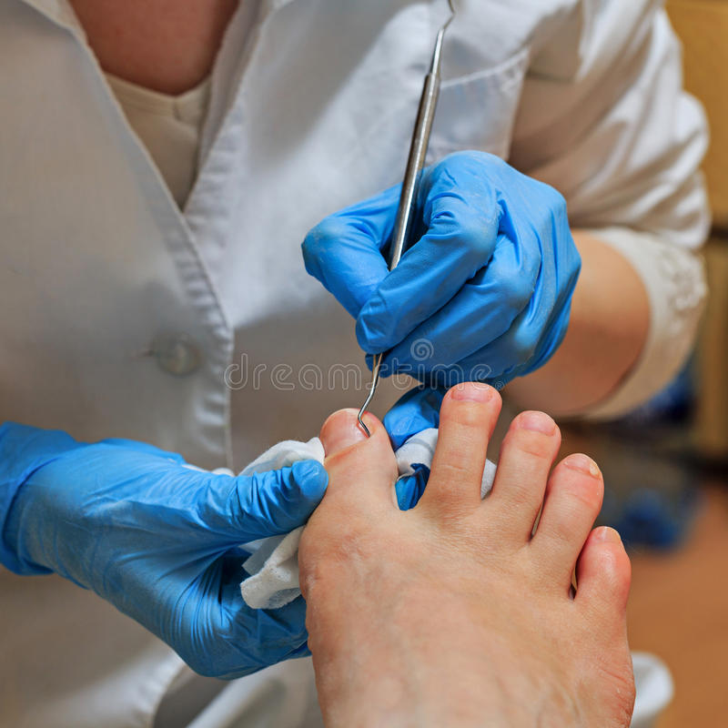 chiropody imagem de stock royalty free