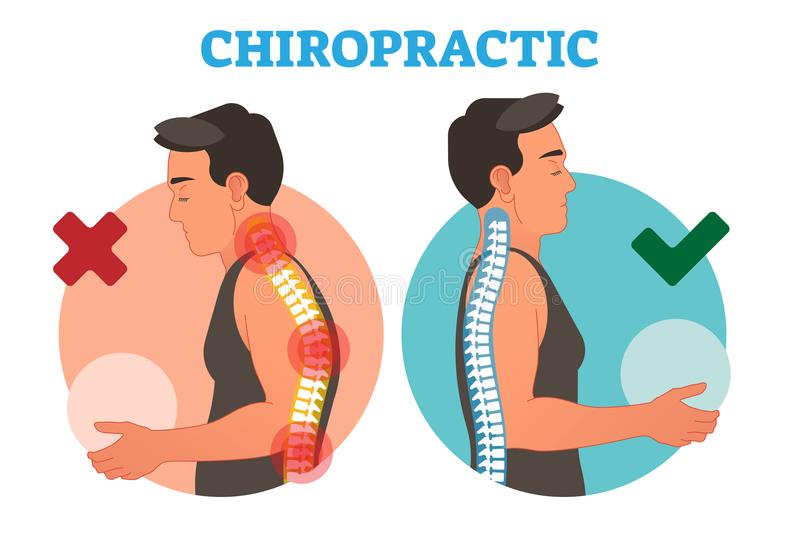 Chiropractic conceptual vector illustration with back bone curvature. Healthy and deformed vector illustration