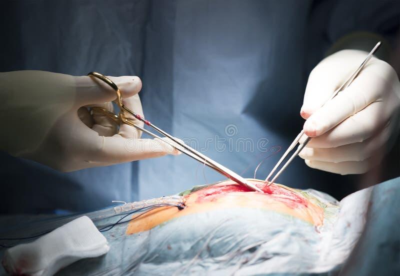 Chirurdzy w bezpłodnych rękawiczek igielnym kahacie zszywali ranę zdjęcie royalty free