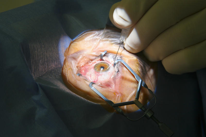 Chirurgia dell'occhio immagine stock libera da diritti