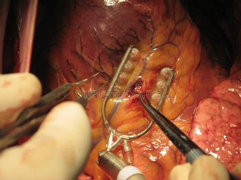 Chirurgia di esclusione di arteria coronaria fotografie stock libere da diritti