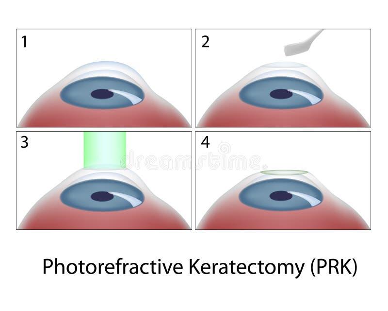 Chirurgia di Photorefractive Keratectomy (PRK) royalty illustrazione gratis