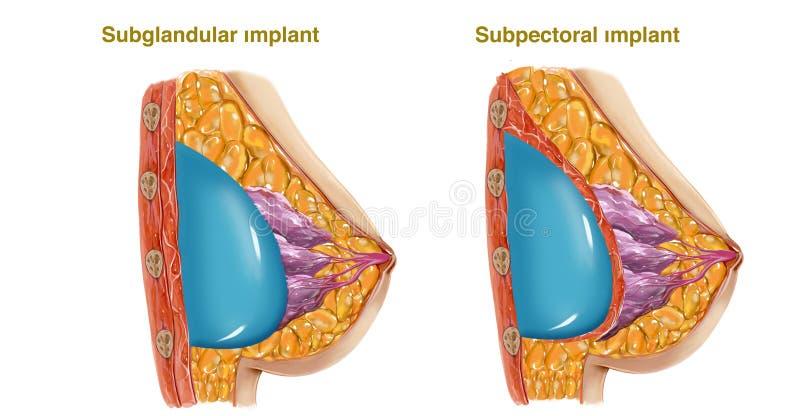 Chirurgia plastica illustrazione di stock