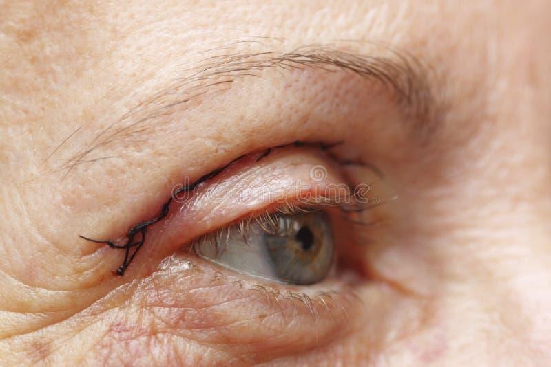 Chirurgia plastica dell'occhio fotografia stock libera da diritti