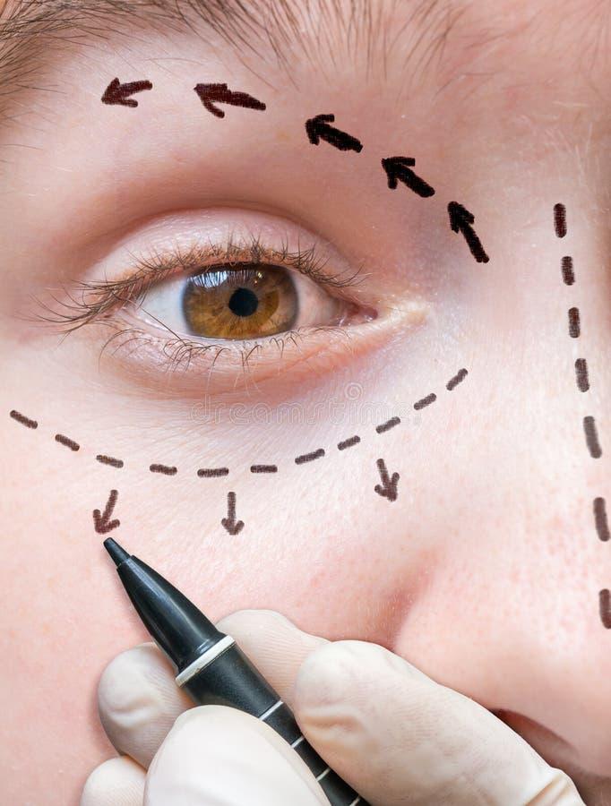 Chirurgia plastica facciale La mano sta disegnando le linee con l'indicatore intorno all'occhio immagine stock