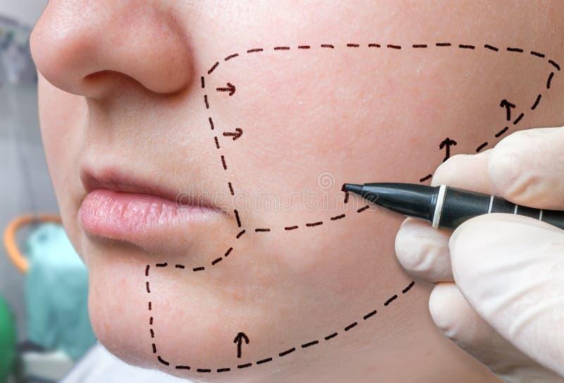 Chirurgia plastica facciale La mano sta disegnando le linee con l'indicatore sulla guancia immagini stock