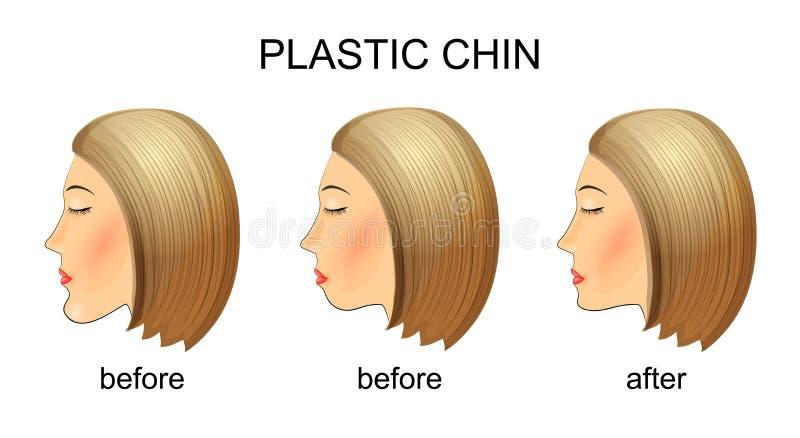 Chirurgia plastyczna podbródek Before and after royalty ilustracja