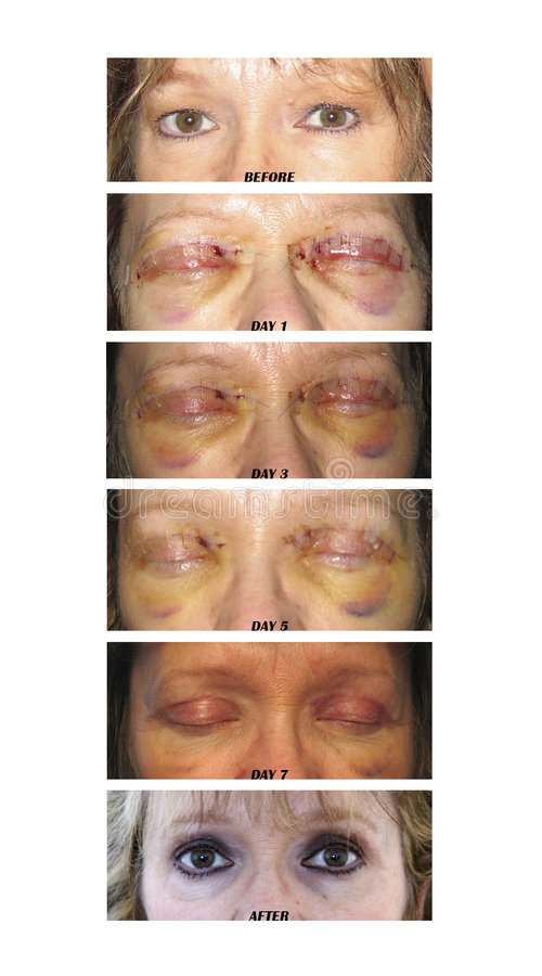 Chirurgie de paupière photos stock