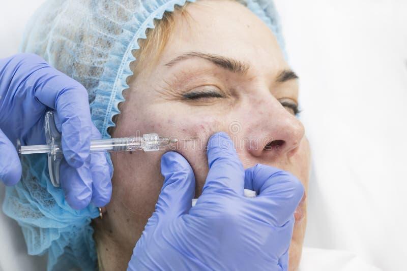 Chirurgie esthétique, procédure de médecine pour une femme adulte images libres de droits
