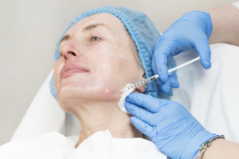 Chirurgie esthétique, procédure de médecine pour une femme adulte images stock