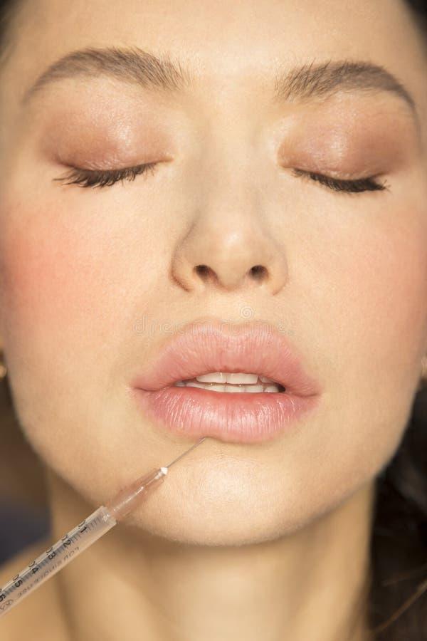Chirurgie plastique dodue attrayante de seringue de lèvres de jeune fille images stock
