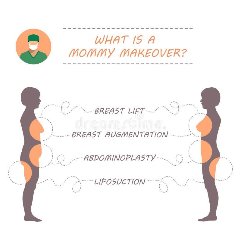 chirurgie plastique, restauration de maman, illustration libre de droits