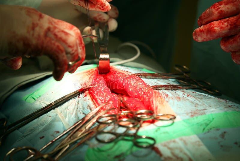 Chirurgische Operation stockfoto
