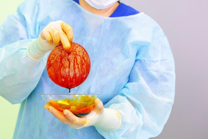 Chirurgo che prepara l'impianto del silicone del seno per l'operazione fotografia stock