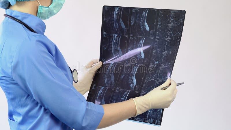 Chirurgo della donna che controlla i raggi x pazienti del collo, trattamento di lesione delle ossa, diagnosi fotografia stock libera da diritti