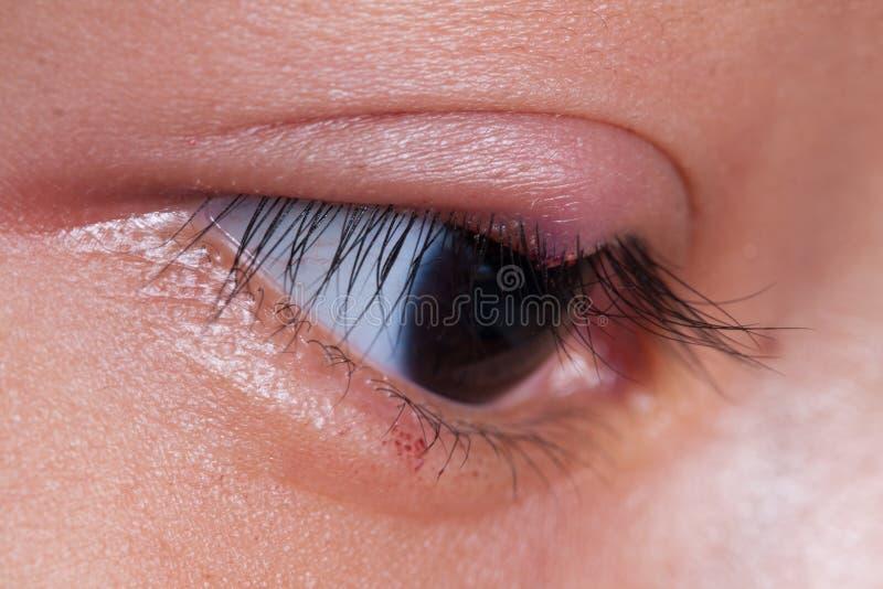Chiuda a destra l'ascesso superiore del coperchio dell'occhio fotografie stock