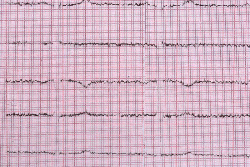 Chiuda su del cardiogramma usato come fondo, tema medico fotografie stock
