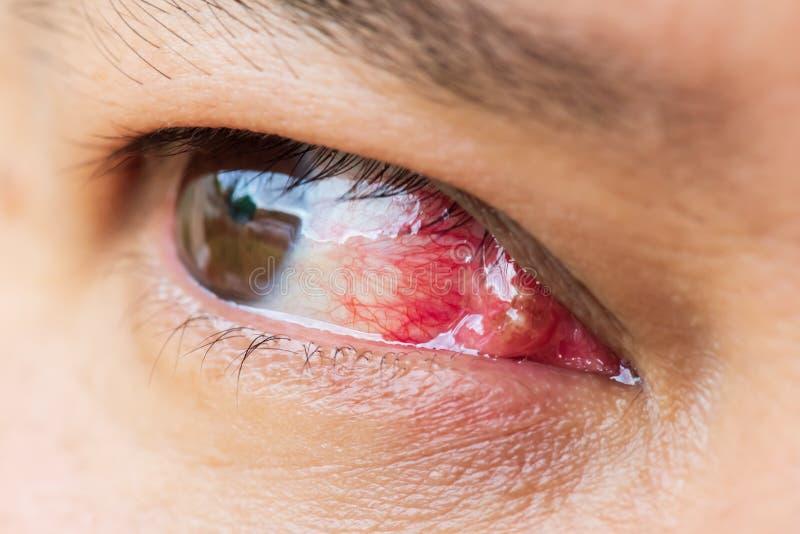 Chiuda su del pterigio durante l'esame degli occhi immagini stock libere da diritti