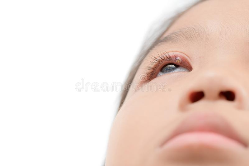 Chiuda su dell'infezione di occhio asiatica della bambina una isolata immagine stock