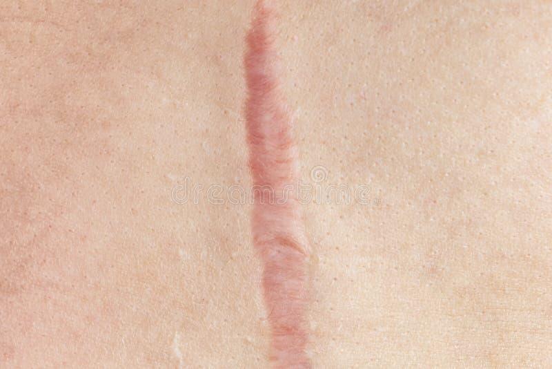 Chiuda su della cicatrice cianotica di cheloide causata da chirurgia e suturare, imperfezioni della pelle o difetti Cicatrice ipe immagini stock