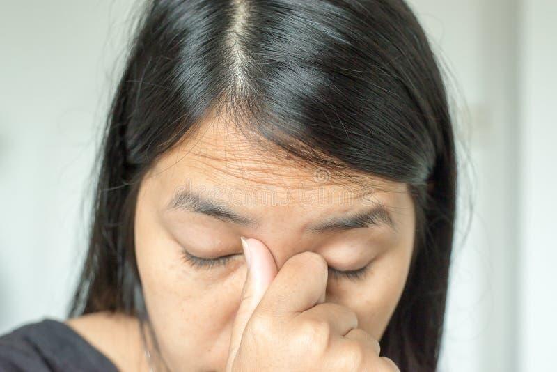Chiuda su della donna asiatica con le grinze della fronte, invecchiare della pelle fotografia stock