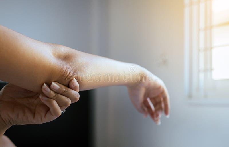Chiuda su della donna con pelle asciutta sul gomito e sul braccio, sul concetto di sanità e del corpo fotografia stock