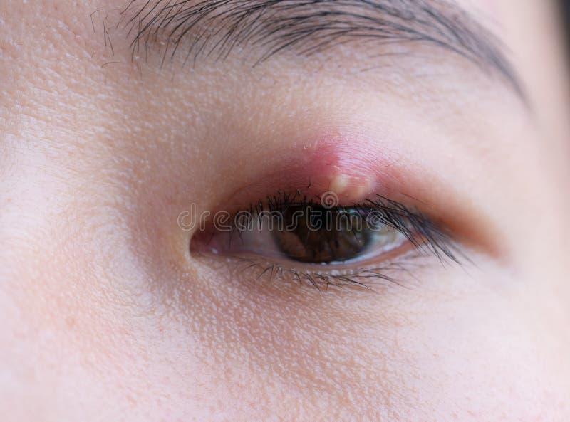 Chiuda su della giovane donna asiatica con l'occhio marrone con l'infezione del porcile Ascesso della palpebra, hordeolum nella s fotografie stock libere da diritti