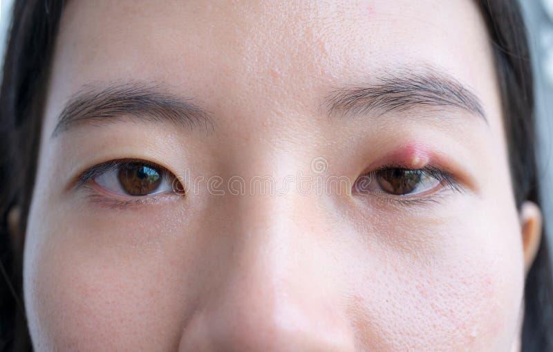Chiuda su della giovane donna asiatica con l'occhio marrone con l'infezione del porcile Ascesso della palpebra, hordeolum nella s immagini stock