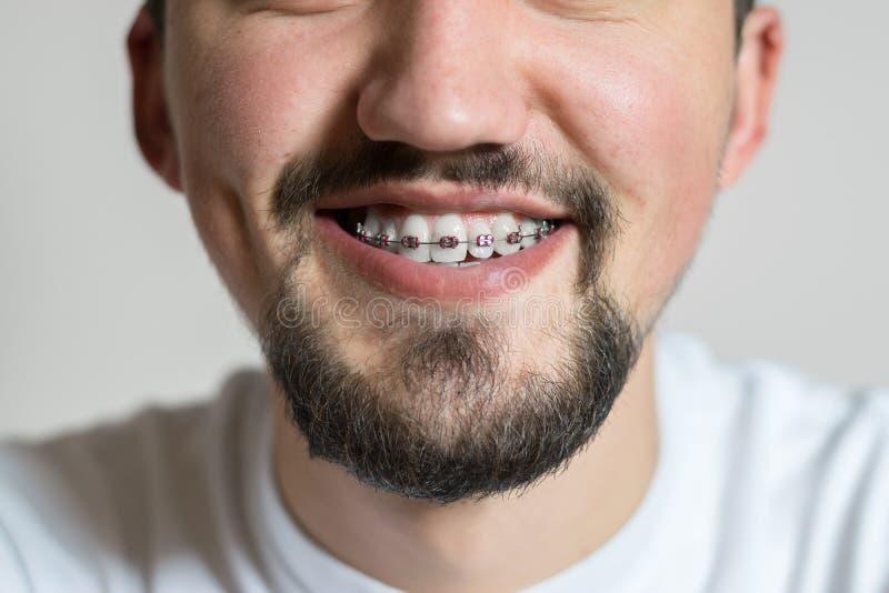 Chiuda su di un giovane con sorridere dei ganci Macro colpo di un giovane con i ganci su un fondo bianco fotografia stock libera da diritti