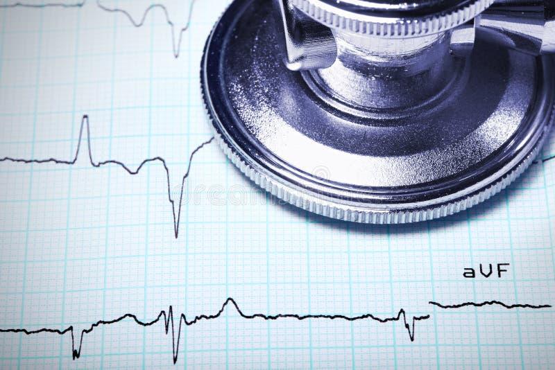 Chiuda su di uno stetoscopio su un ECG. fotografia stock libera da diritti