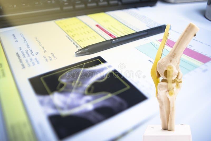 Chiuda su una penna messa sul risultato dell'anca di densitometria dell'osso Su luminoso Fondo fotografie stock libere da diritti