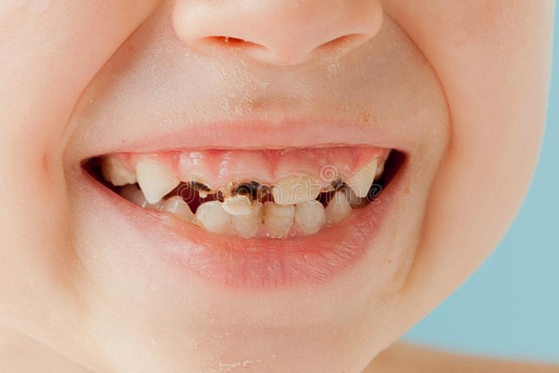 Chiuda sul colpo dei denti da latte con le carie fotografie stock libere da diritti