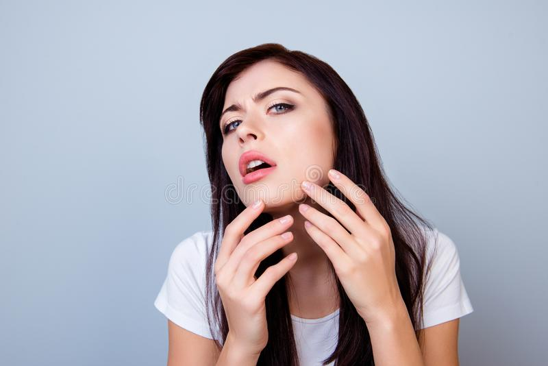 Chiuda sulla foto della ragazza che schiaccia fuori un brufolo sul suo mento isolato sullo copia-spazio grigio del fondo Foto ape immagine stock