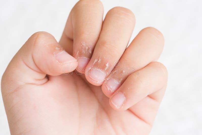 Chiuda sulle dita del ` s del bambino con pelle asciutta, dermatite dell'eczema medic fotografia stock libera da diritti