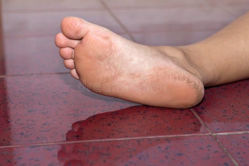 Chiuso-su di un tallone asciutto e incrinato, tallone della crepa sul backgro del pavimento immagine stock