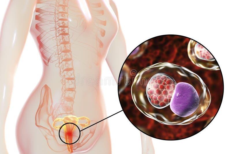 Chlamydiosis fêmea, conceito médico ilustração do vetor