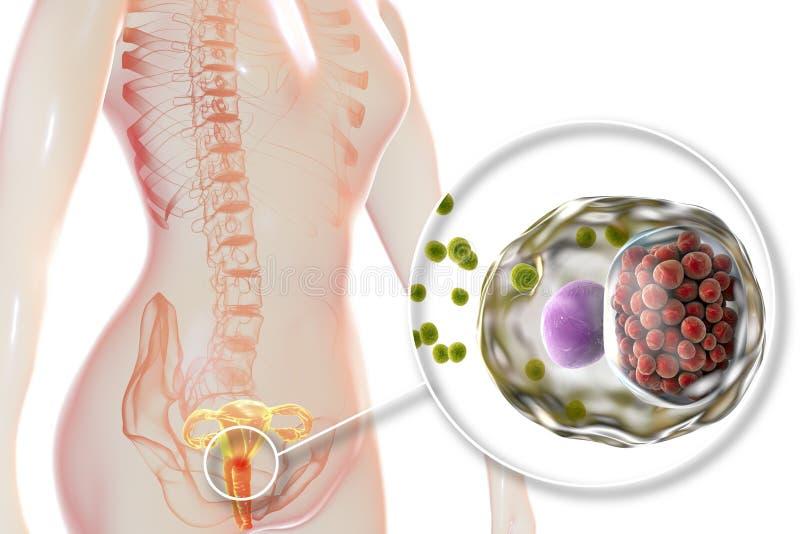 Chlamydiosis fêmea, conceito médico ilustração royalty free