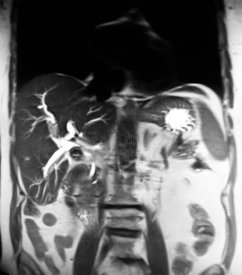 Cholangiogramgallbladder mri van stenencholecystosis royalty-vrije stock foto's