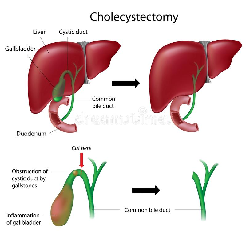 cholecystectomy royaltyfri illustrationer